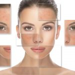 What Exactly Is Rosacea And How Can You Treat It?